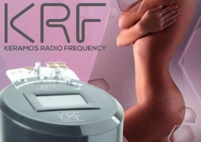 krf-radiofrequenza
